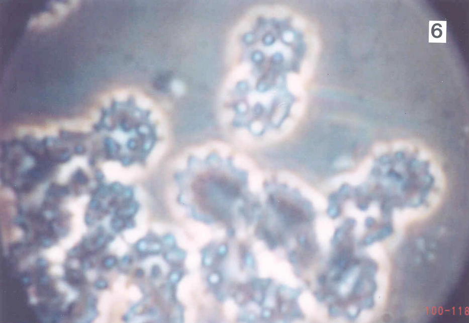Blood cells heavily infected with cancer -  40x Phase contrast