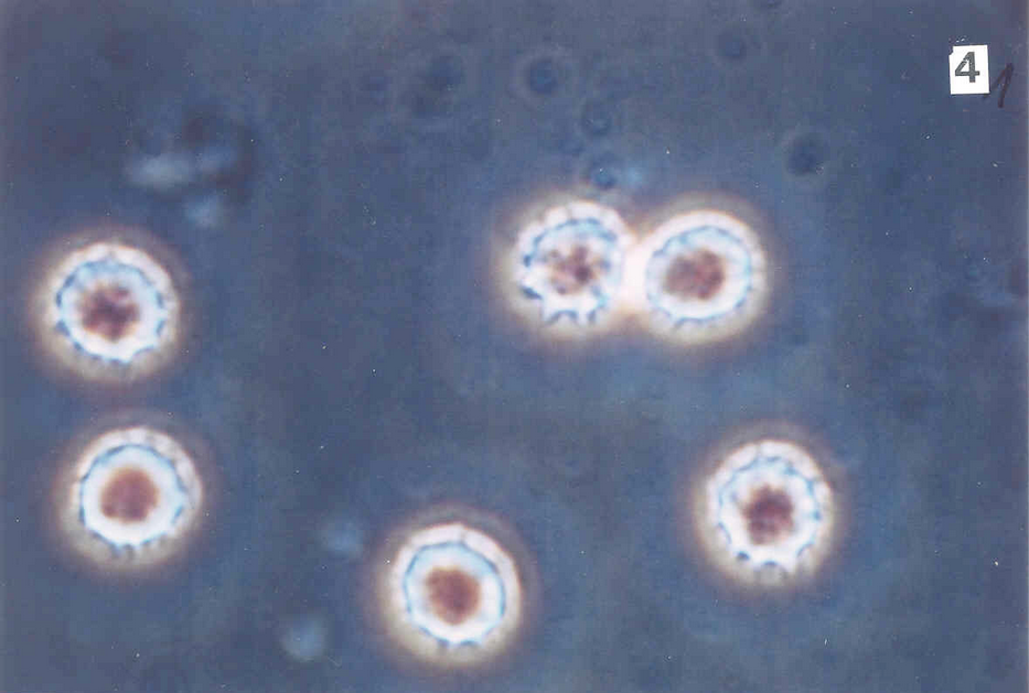 Leukemia - 40x Phase contrast
